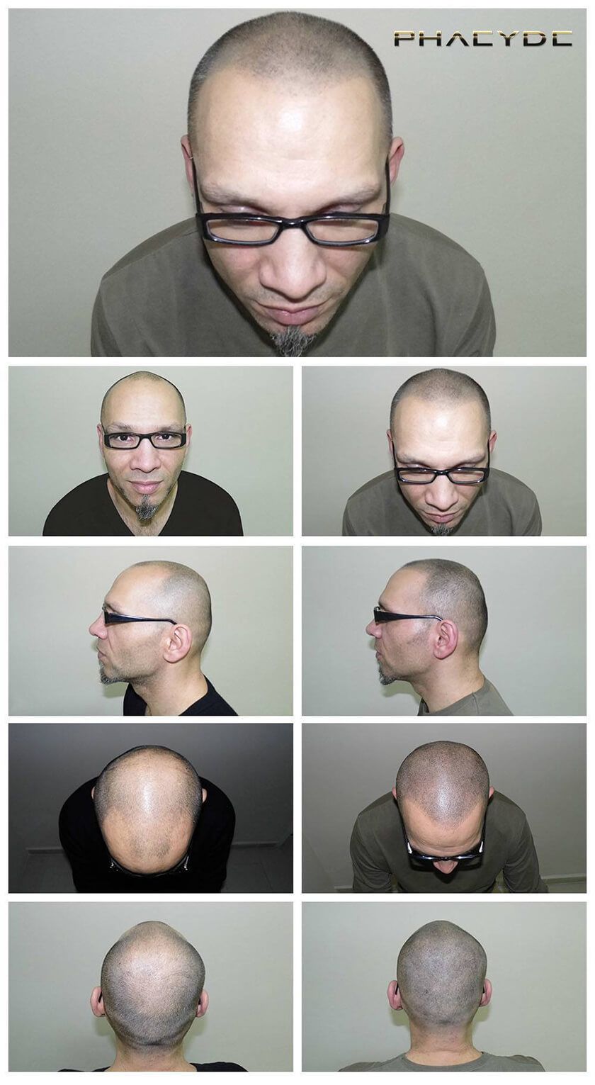 Before After Hair Pigmentation Photos at PHAEYDE Clinic